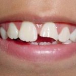 fractura_dental